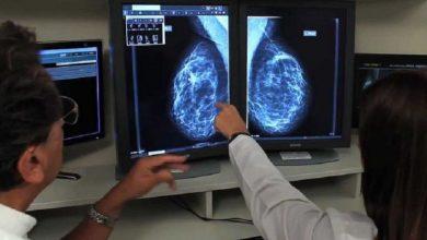Photo of Seremi Salud llama a no descuidar exámenes preventivos para cáncer de mamas